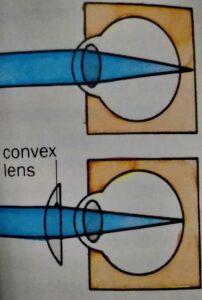 Eye treatment and Advanced Eye Care Guide