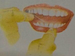 Teeth Care and Teeth treatment guide